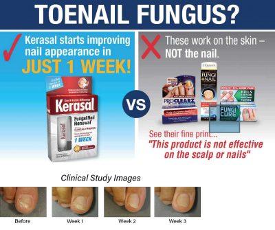 kerasal-fungal-nail-renewal-01